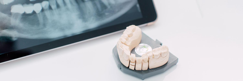 Zahnarzt Köln-Bayenthal - Dr. Andrea Fedder - Praxis - Zahnmodell